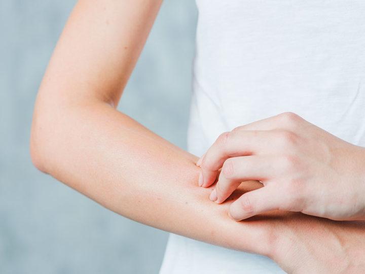 ¿Sabes si tienes la piel seca?